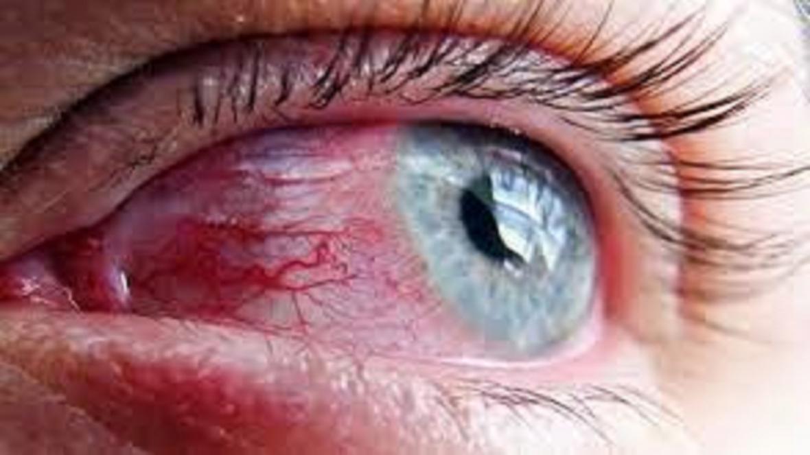 عوارض مواد ضدعفونی کننده روی چشم