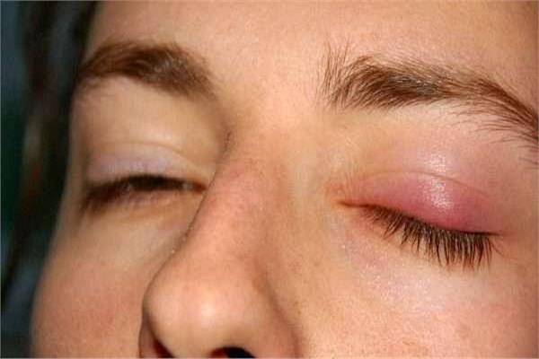 علل کیست های چربی در چشم و راه های درمان آنها